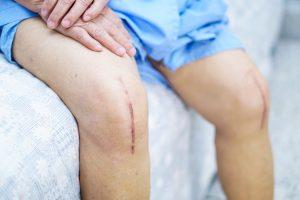 patient assis opéré des genoux illustrant la RAC